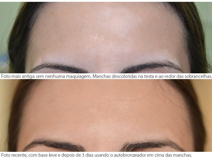 vitiligo_corretivo_1