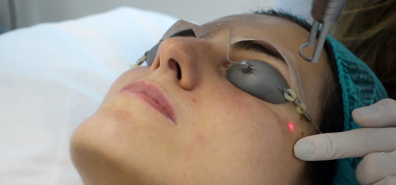 Antes e Depois do meu tratamento de Melasma com laser Spectra Nd:YAG Q-Switched